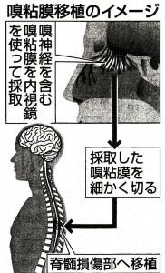 脊髄損傷患者鼻粘膜