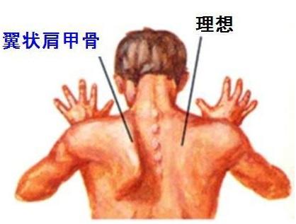「翼状肩甲」の画像検索結果