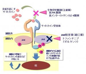 関節リウマチ2